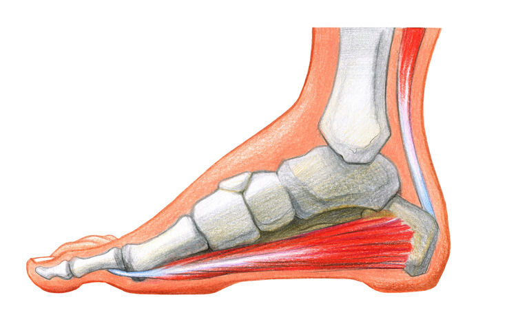 Scheme of foot with the corn and plantar callosityon