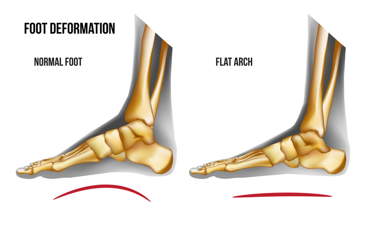 Anatomy flat foot arch medial view