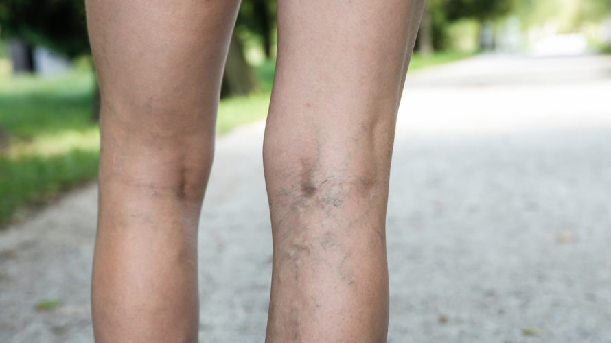 Painful varicose and spider veins on womans legs